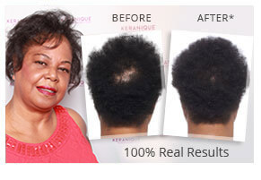 Keranique Hair Regrowth Hair Growth Products For Women